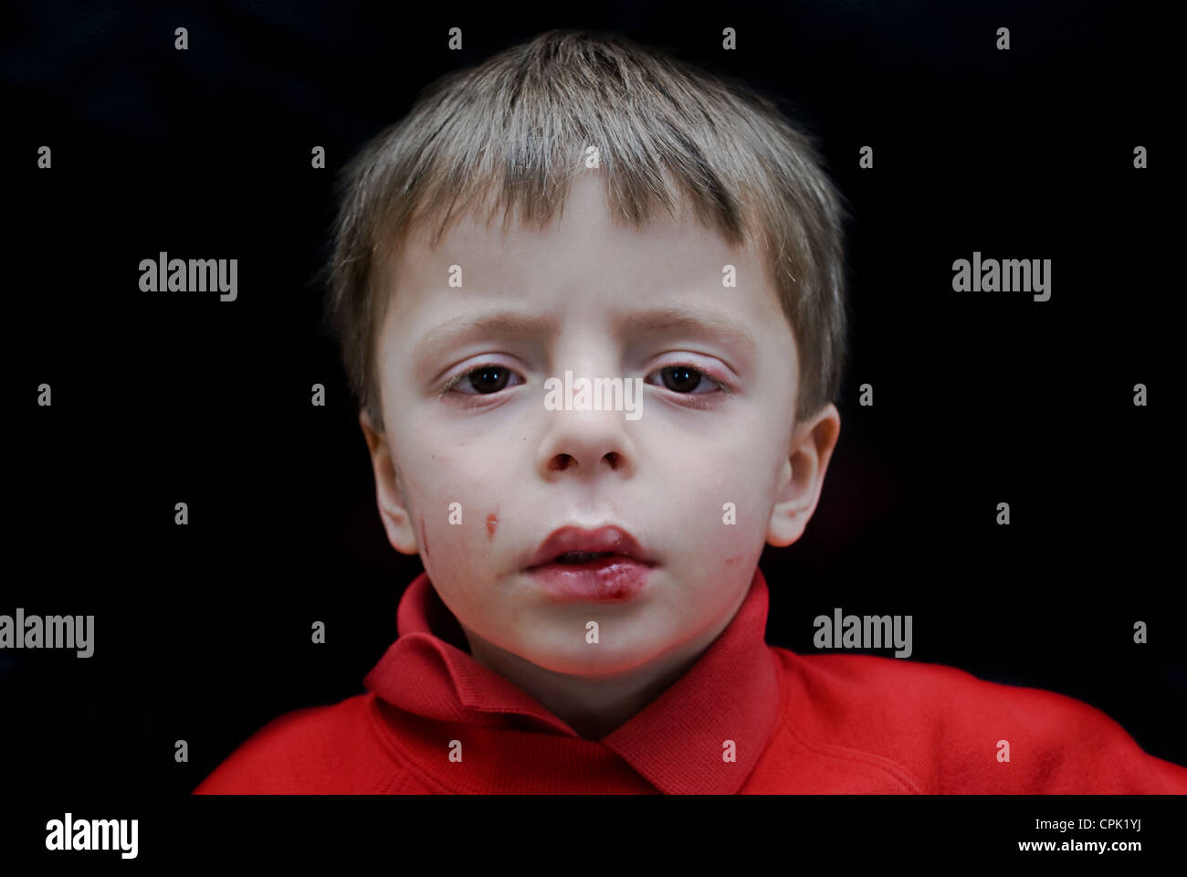 Impression of an abused child or child that has been hurt from falling over. - Stock Image