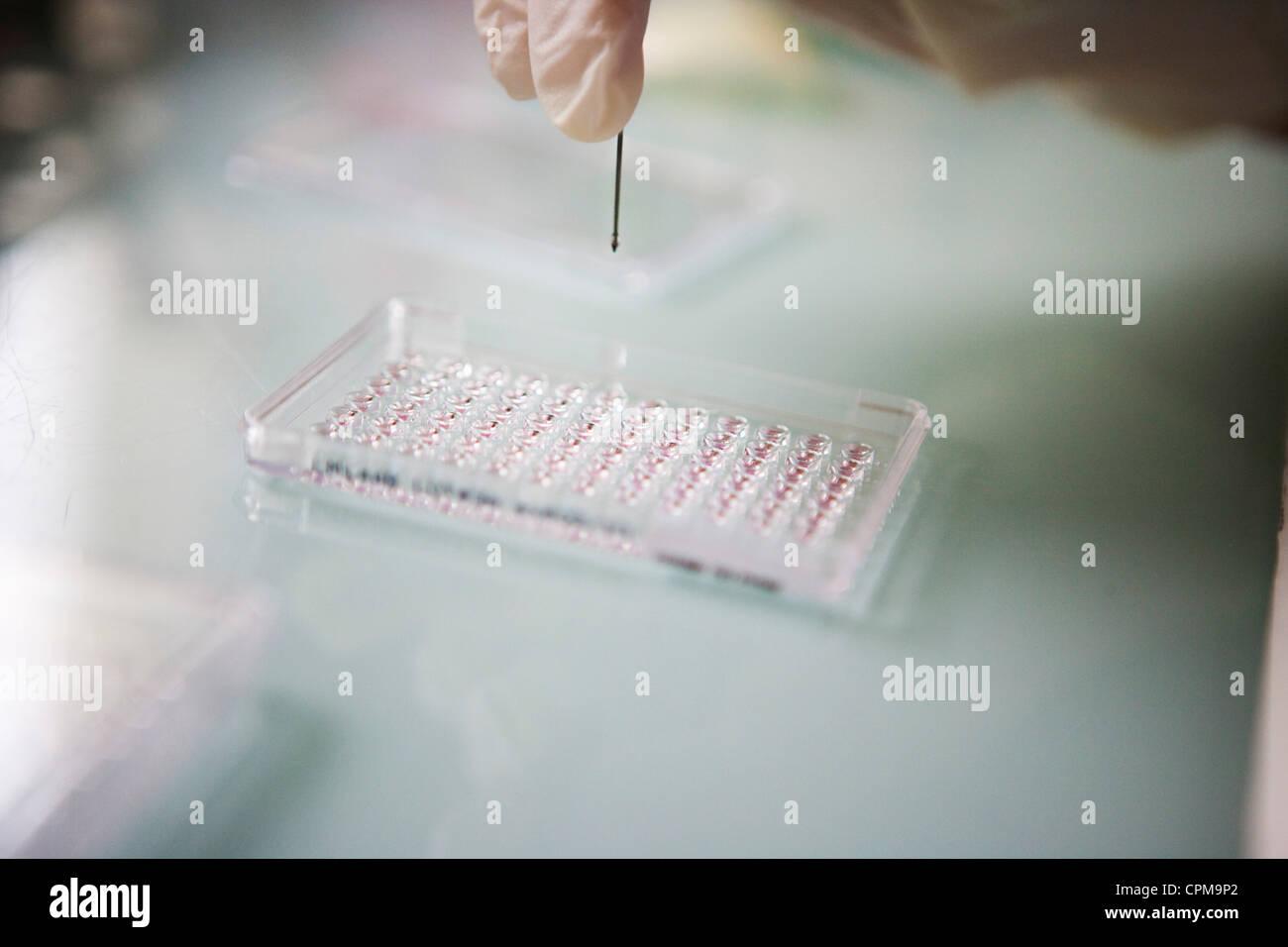 BLOOD ANALYSIS - Stock Image