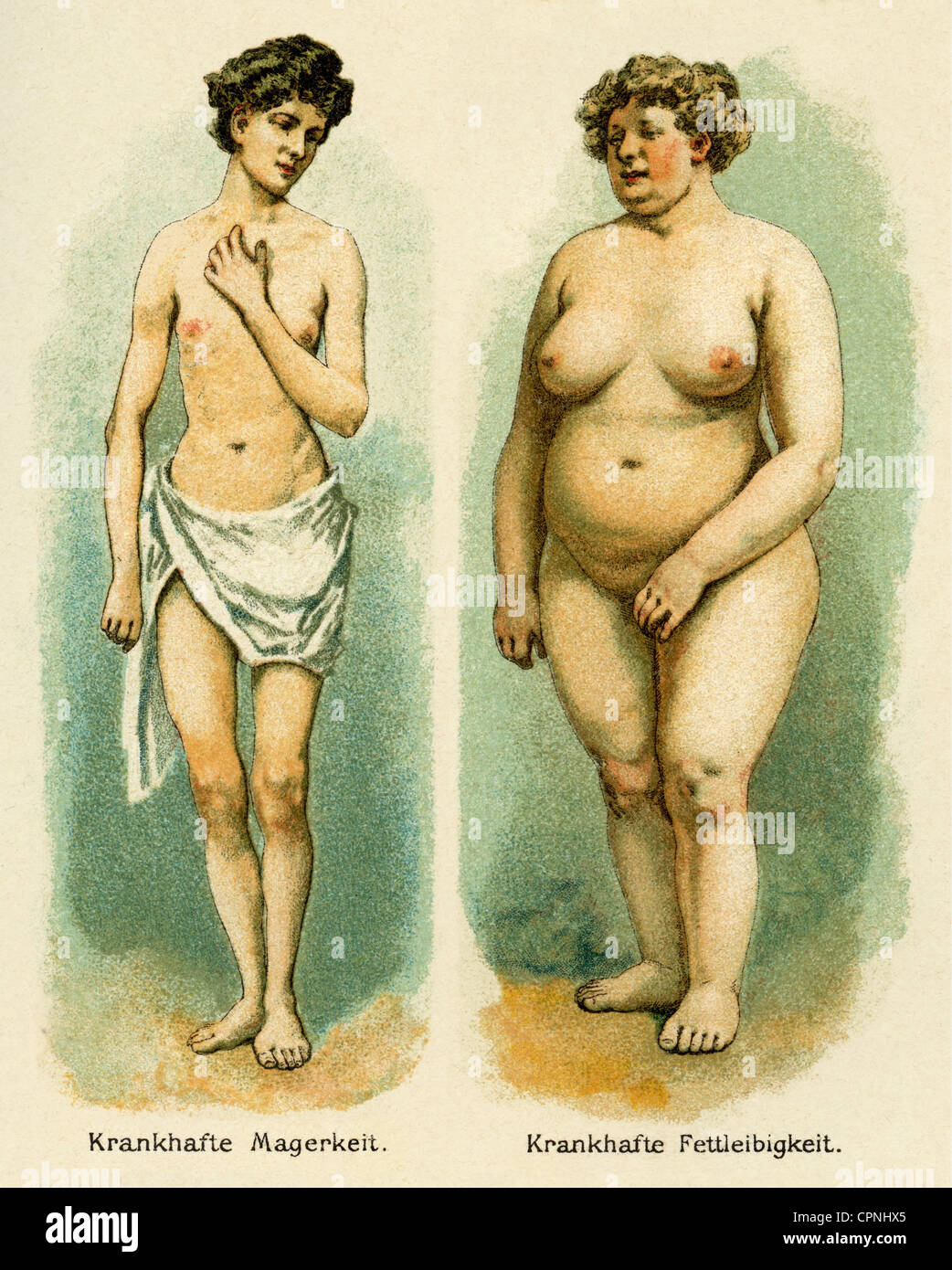 medicine, pathological meagerness, pathological obesity, eating disorder of women, lithograph, Germany, 1909, Additional Stock Photo