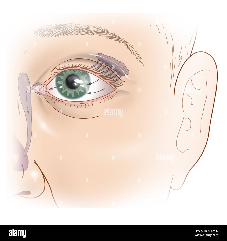 Eye Tear Duct Stock Photos & Eye Tear Duct Stock Images - Alamy