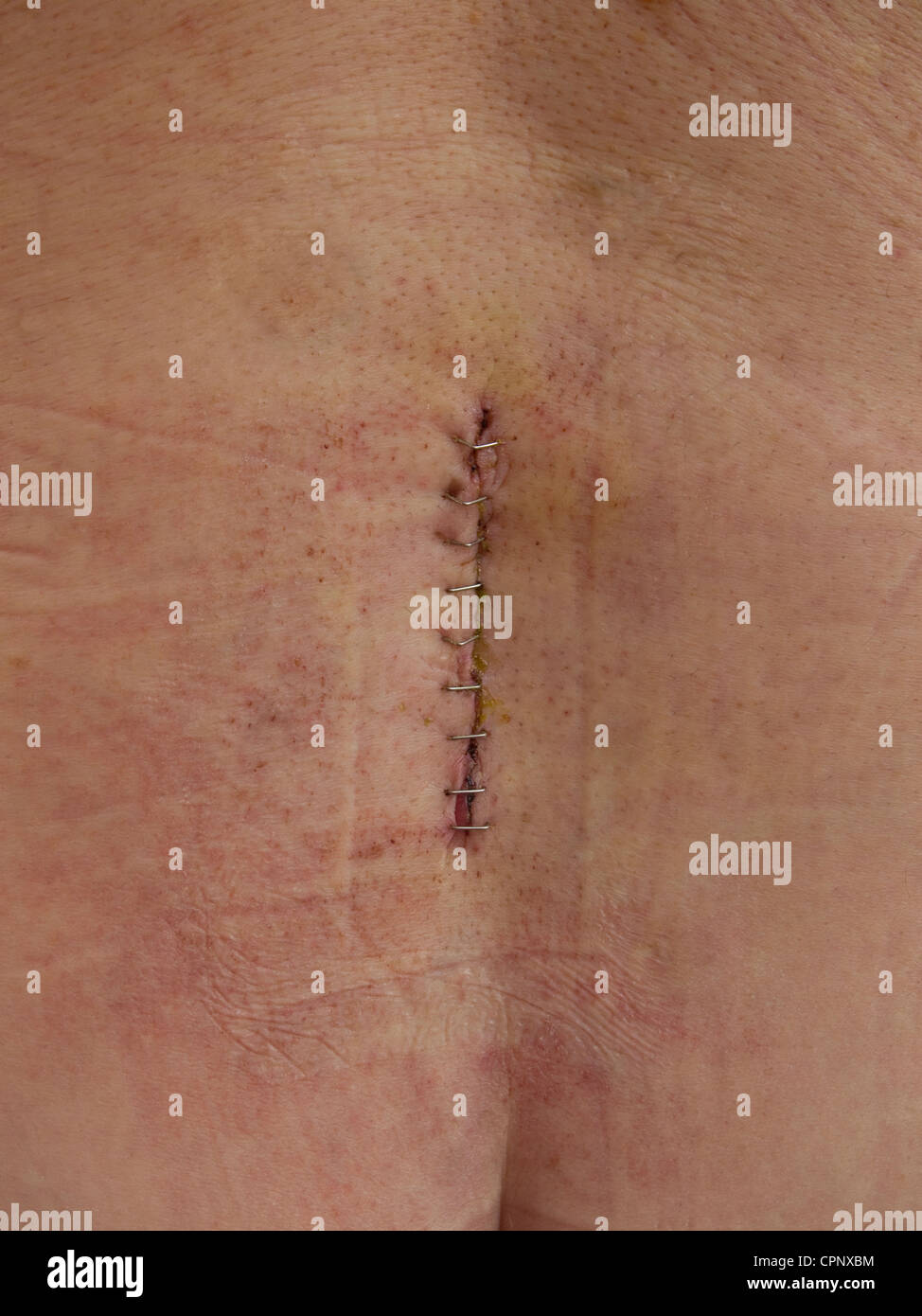 The wound site of a lumbar discectomy to remove herniated disc material in a male, held together by metal clips - Stock Image