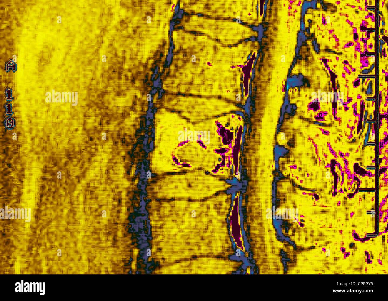 MULTIPLE MYELOMA, BONE MARROW - Stock Image