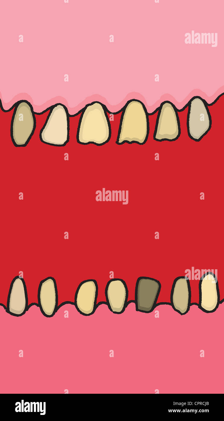 Mouth with decaying dental health. - Stock Image
