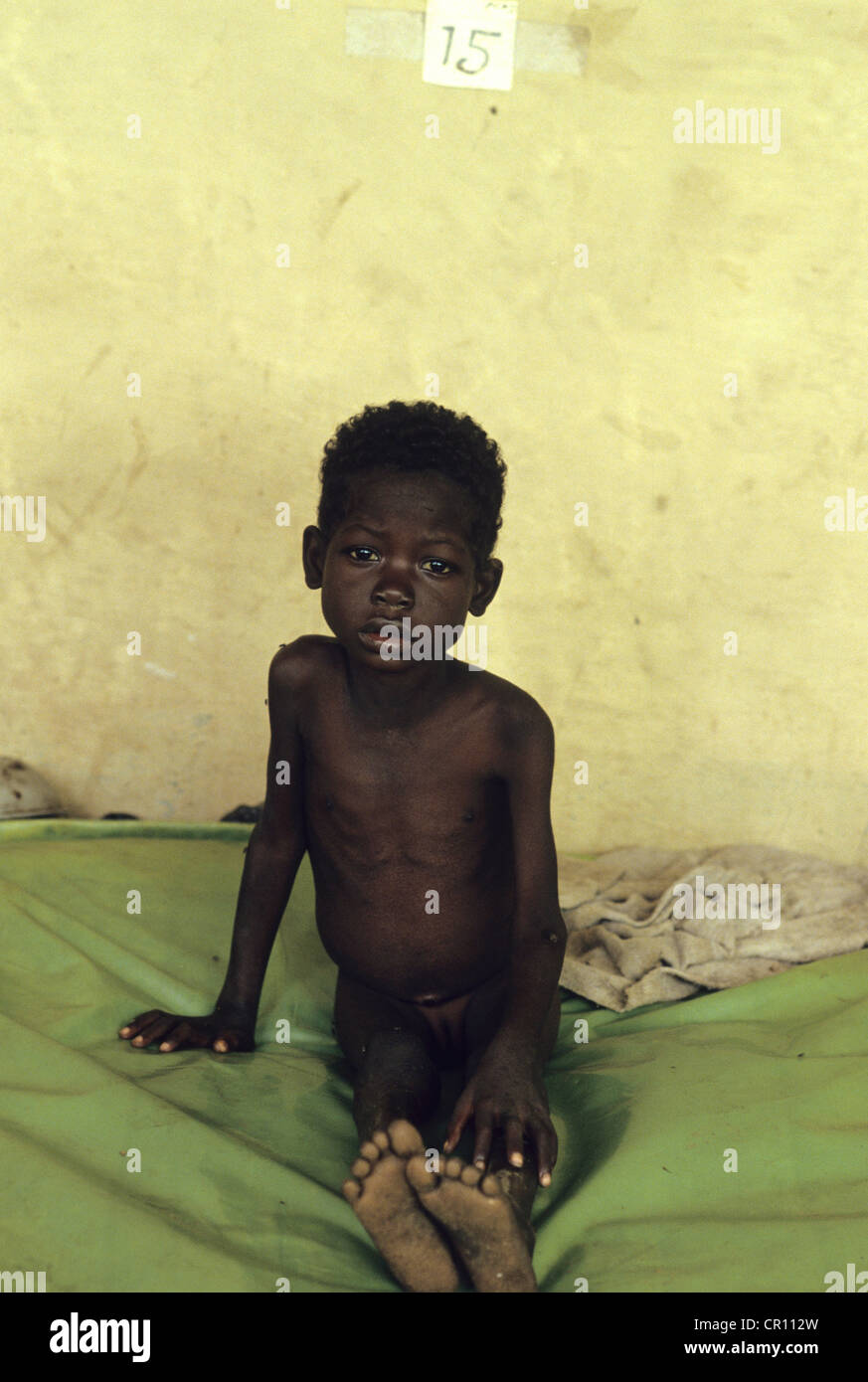 A Dinka girl in a makeshift hospital at Thiet feeding camp in Southern Sudan. - Stock Image