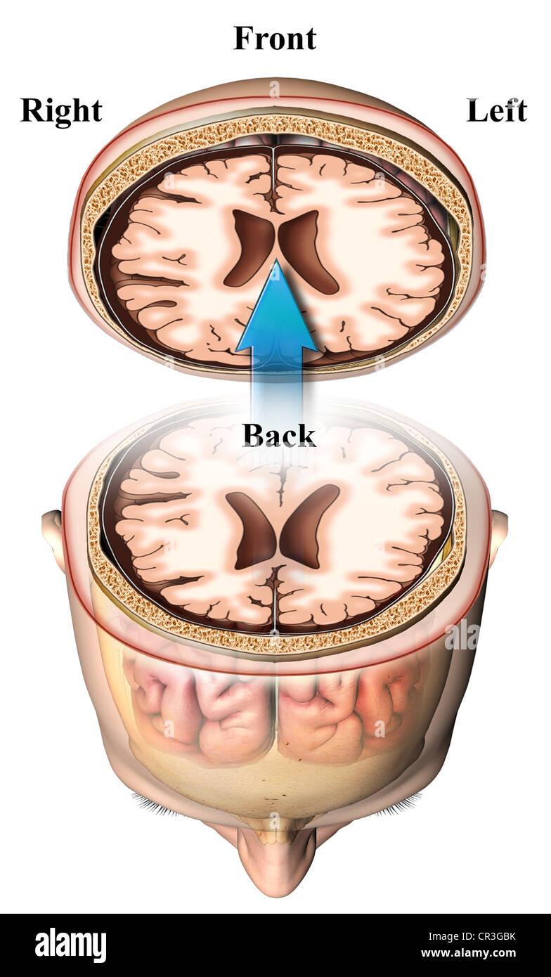 Axial Brain Study - Slice Orientation Stock Photo: 48636551 - Alamy