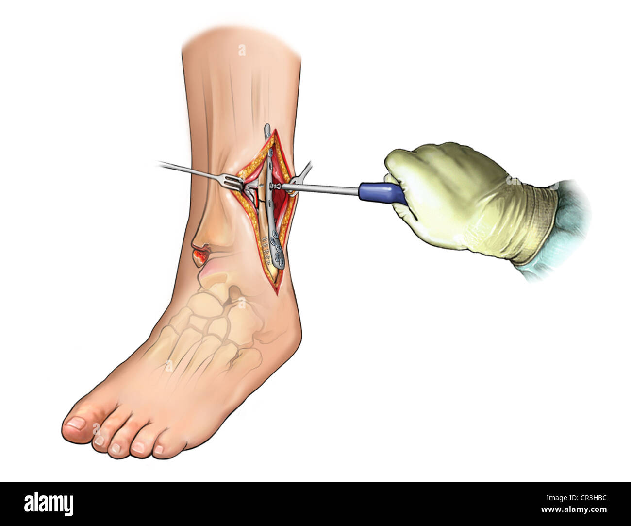 Fibular Fracture Fixation with Plate and Screws - Stock Image