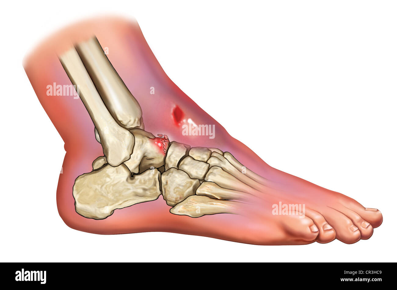 Talus foot. Fracture of the talus of the foot: consequences 21