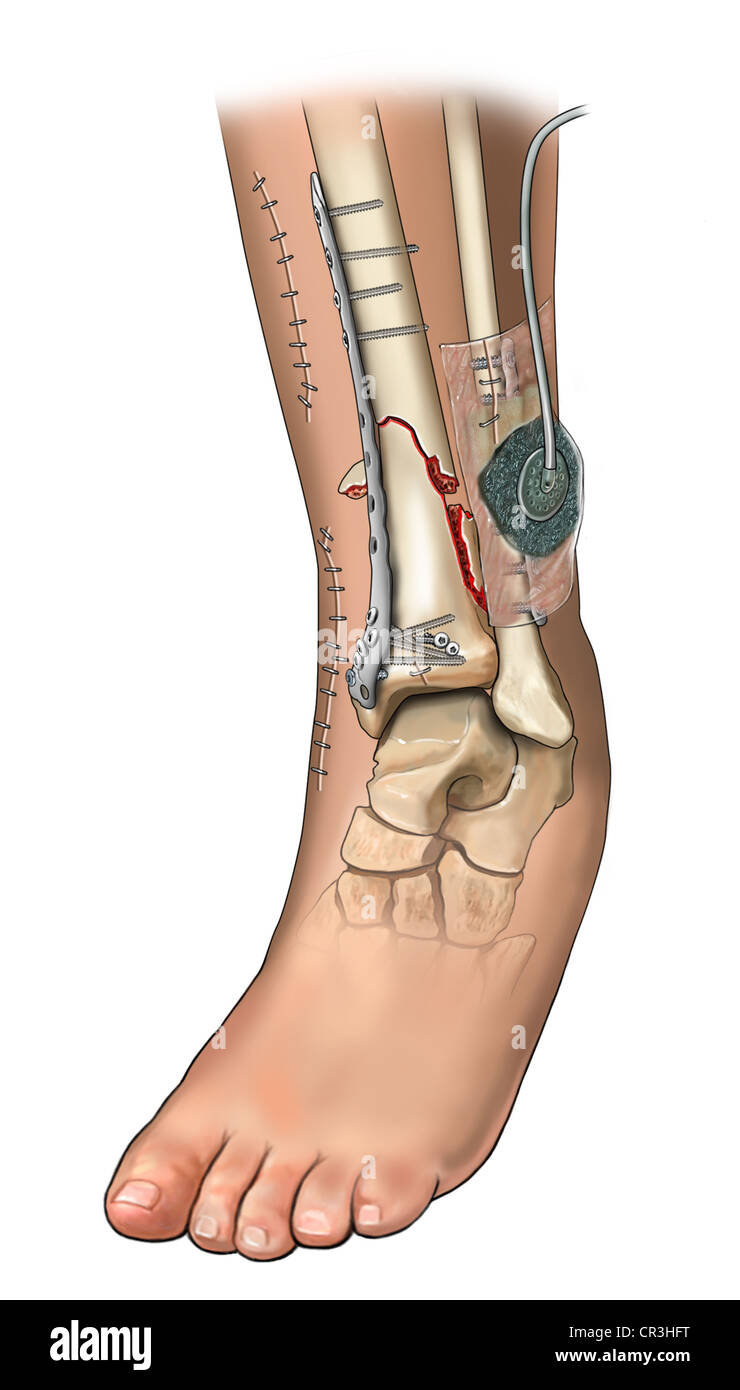 Tibia and Fibular Fracture Fixations - Stock Image