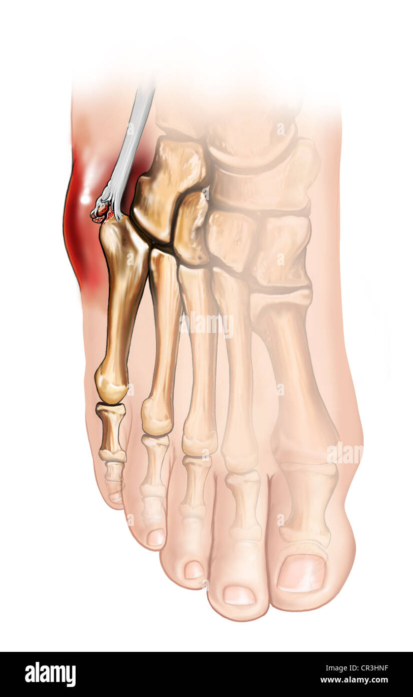 Peroneus Brevis Tendon Stock Photos & Peroneus Brevis Tendon Stock ...