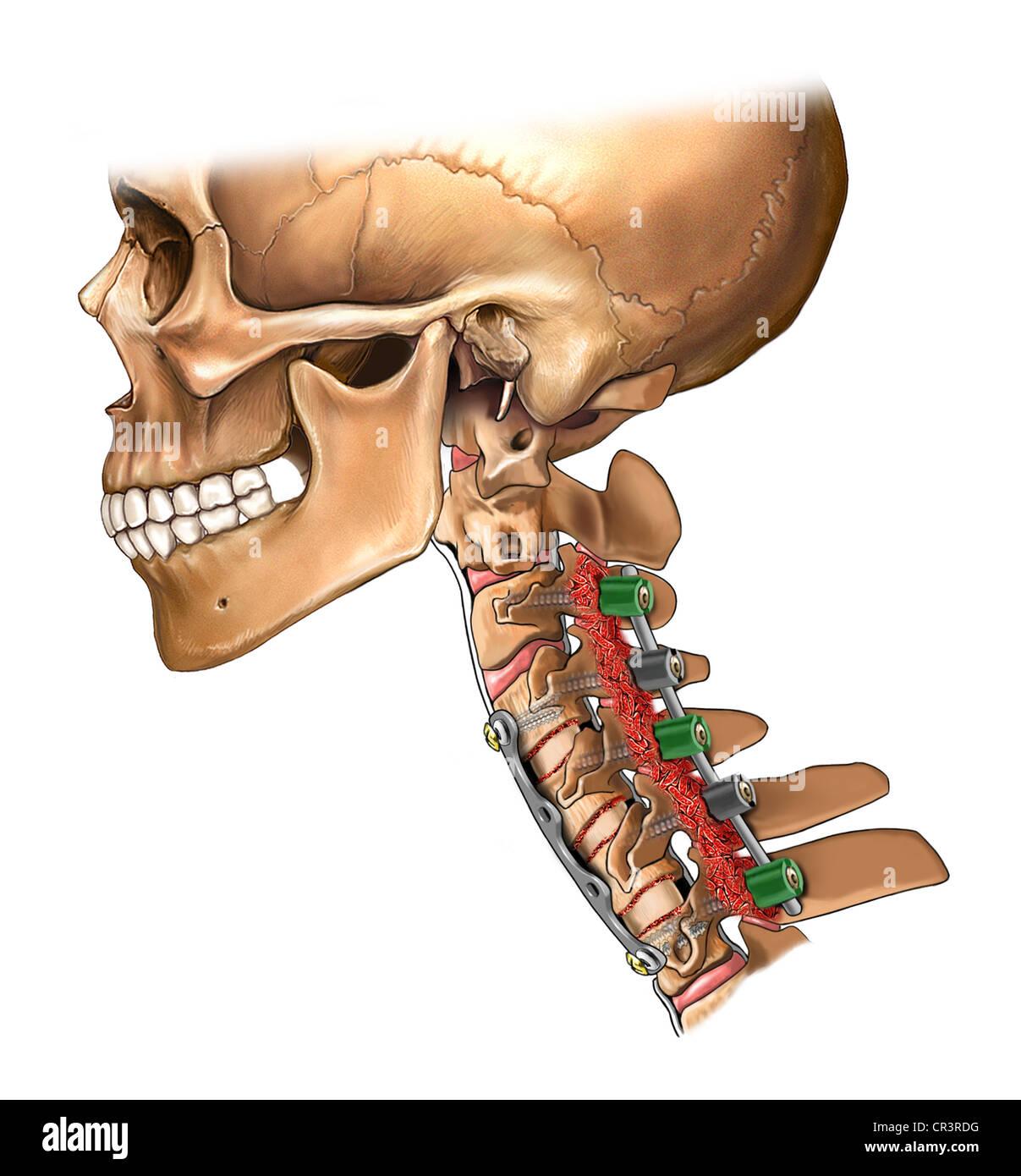 Cervical Bone Fusion Stock Photos Cervical Bone Fusion Stock