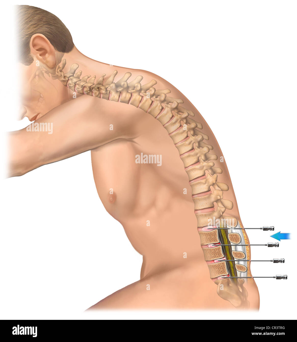 Lumbar Spine Sagittal Stock Photos Lumbar Spine Sagittal Stock