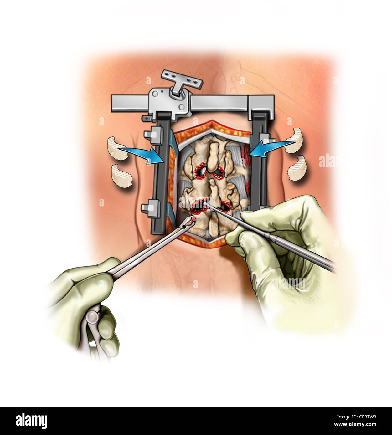 L2-3, L3-4 Foraminotomies and Discectomy - Stock Image