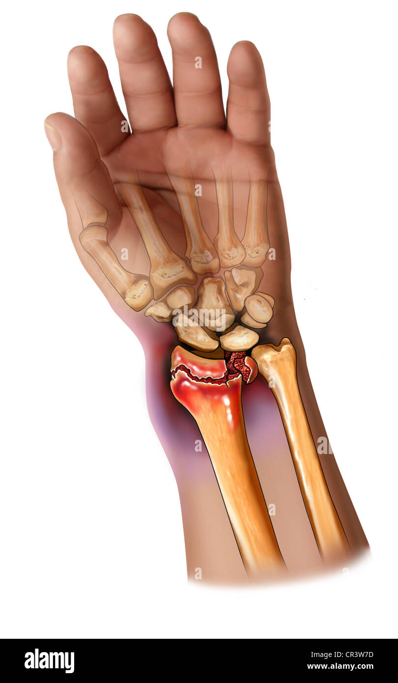 Radius And Ulna Stock Photos & Radius And Ulna Stock Images - Alamy