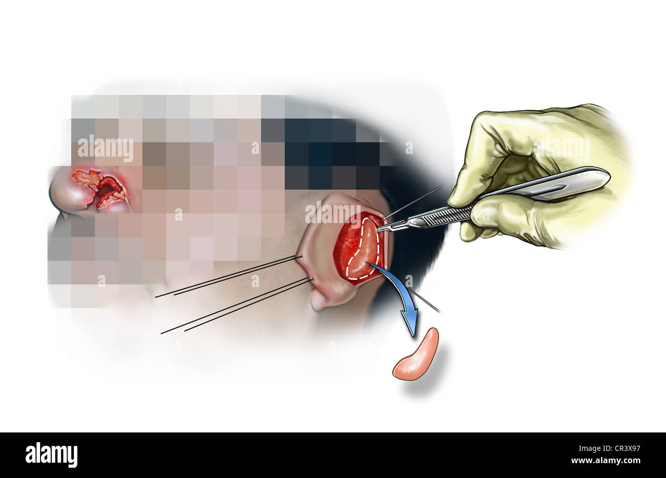 Ear cartilage stock photos ear cartilage stock images alamy harvest of ear cartilage stock image ccuart Choice Image