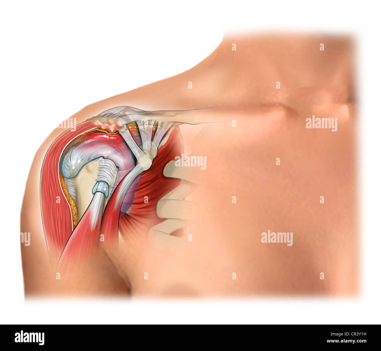 Soft Tissue Impingement in the Shoulder Stock Photo: 48644893 - Alamy