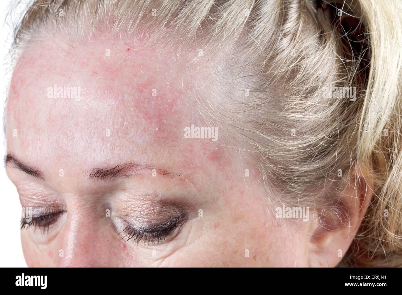 Dry mature dry skin