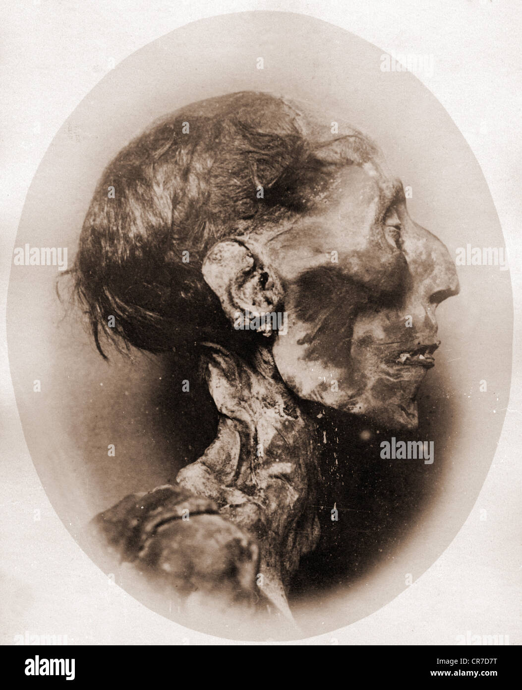 Ramesses II 'The Great', Pharaoh of Egypt 1279 - 1213 BC (19th Dynasty), his mummy, head, photo, late 19th - Stock Image
