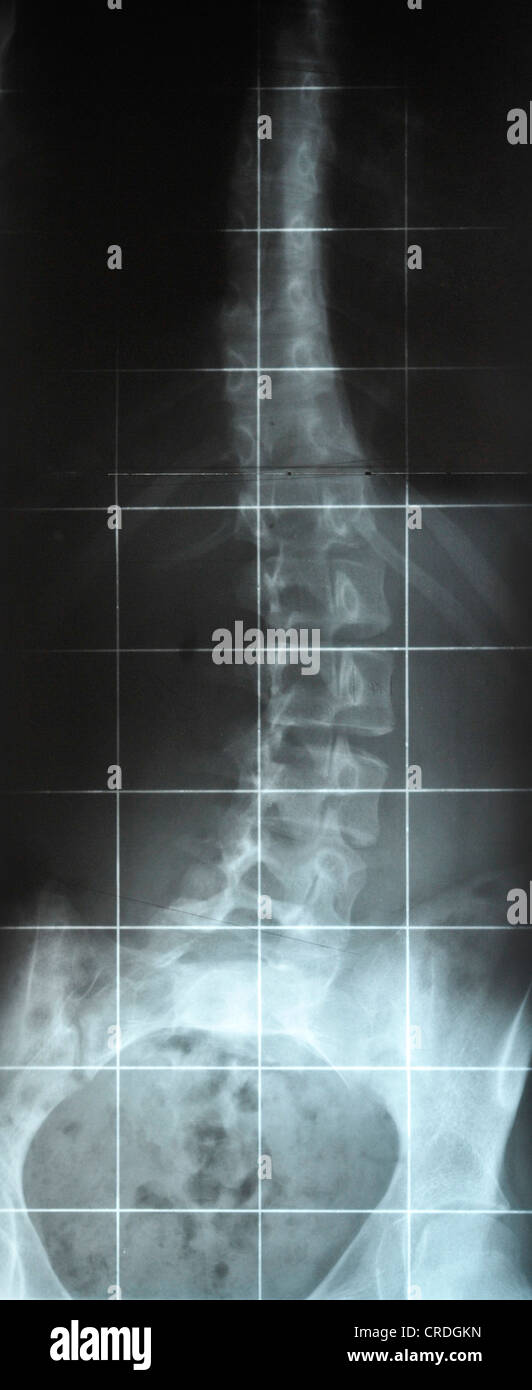 X-ray image of a curved spine due to scoliosis - Stock Image