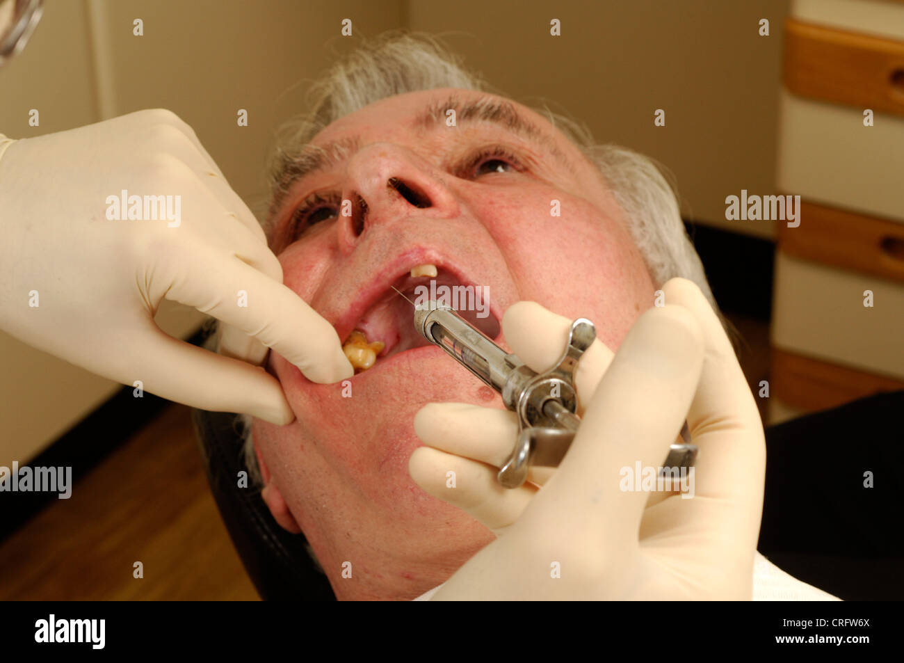 Close-up of an elderly man having a pain-killing anaesthetic injected into his gums before the start of surgery. - Stock Image