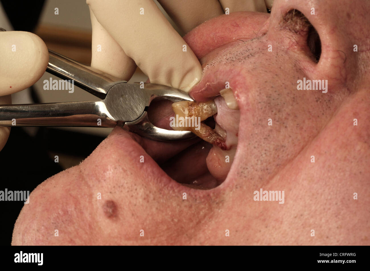 Close up of the removal of a decaying tooth. - Stock Image