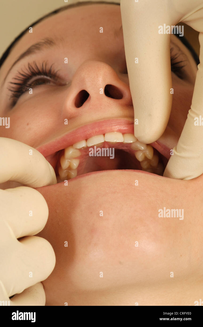 A dentist examines a young female womans molars during a routine dental check-up. - Stock Image
