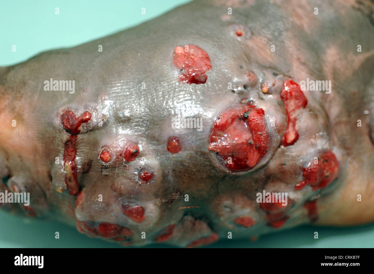 Enlarged foot due to Mycetoma Mycetoma is an uncommon disease found in the tropics. It is a chronic, localised infection - Stock Image