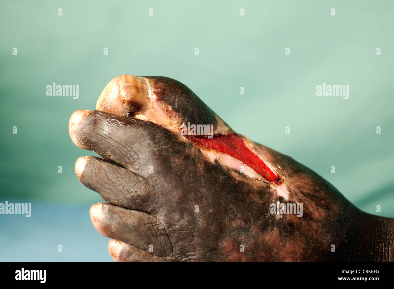 Actinomycetoma of the left foot. Mycetoma is an uncommon disease found in the tropics. It is a chronic, localised - Stock Image
