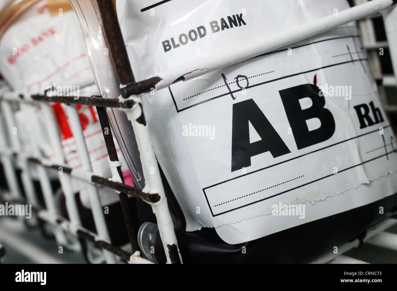 A blood bag containing group AB blood. Blood group AB contains both A an B antigens and has no Antibodies present. - Stock Image