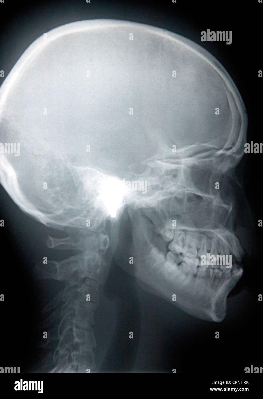 X-ray of a human skull. - Stock Image