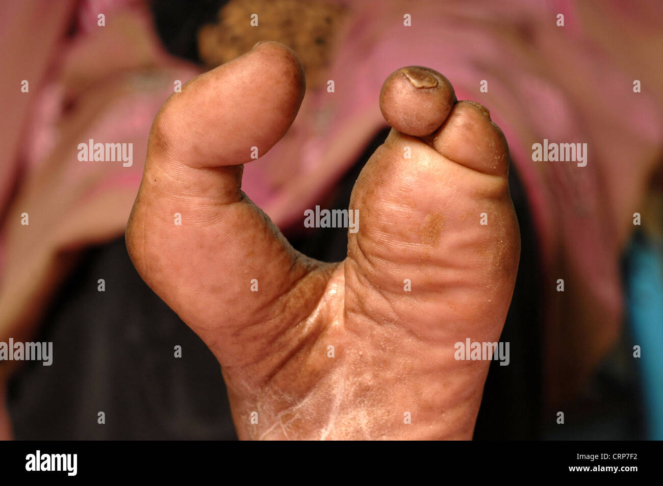 Close up of the left foot of a 32 year old female with amputated middle toes due recurrent mycetoma. - Stock Image