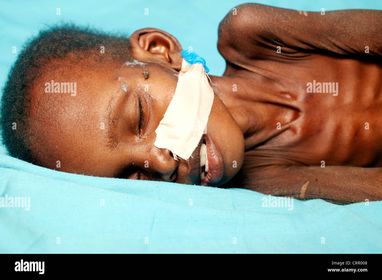 A 2 year old boy suffering from serious malnutrition with severe wastening and loss of subcutaneous