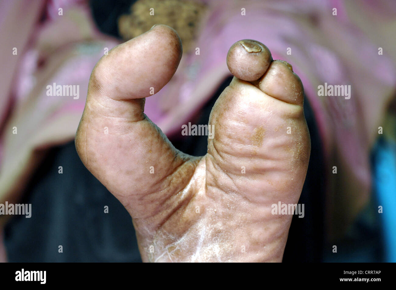 Close up of a left foot with second, third and fourth toes amputated. Stock Photo