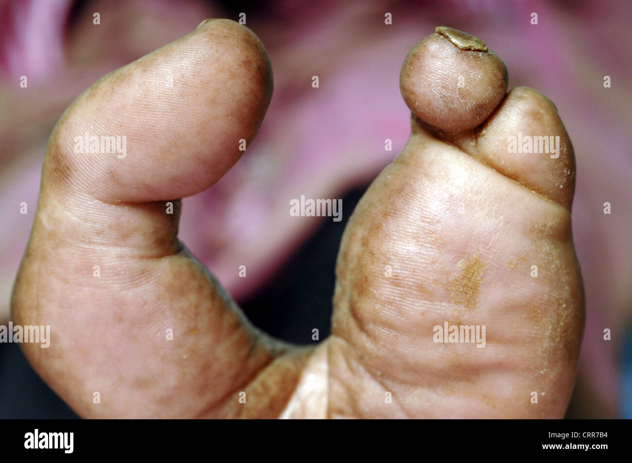 Close up of a left foot with second, third and fourth toes amputated. - Stock Image