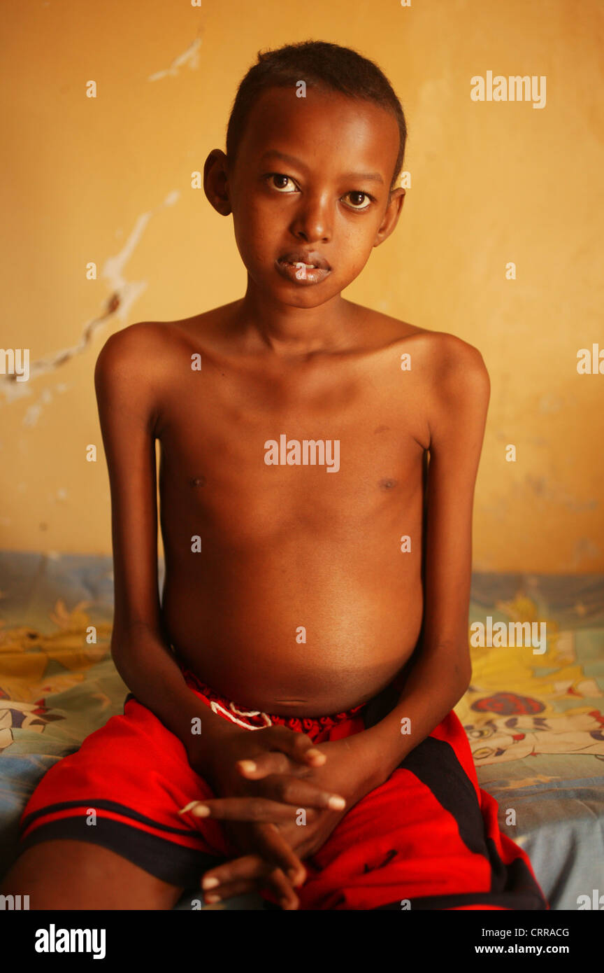 A child with a deformed torso - Stock Image