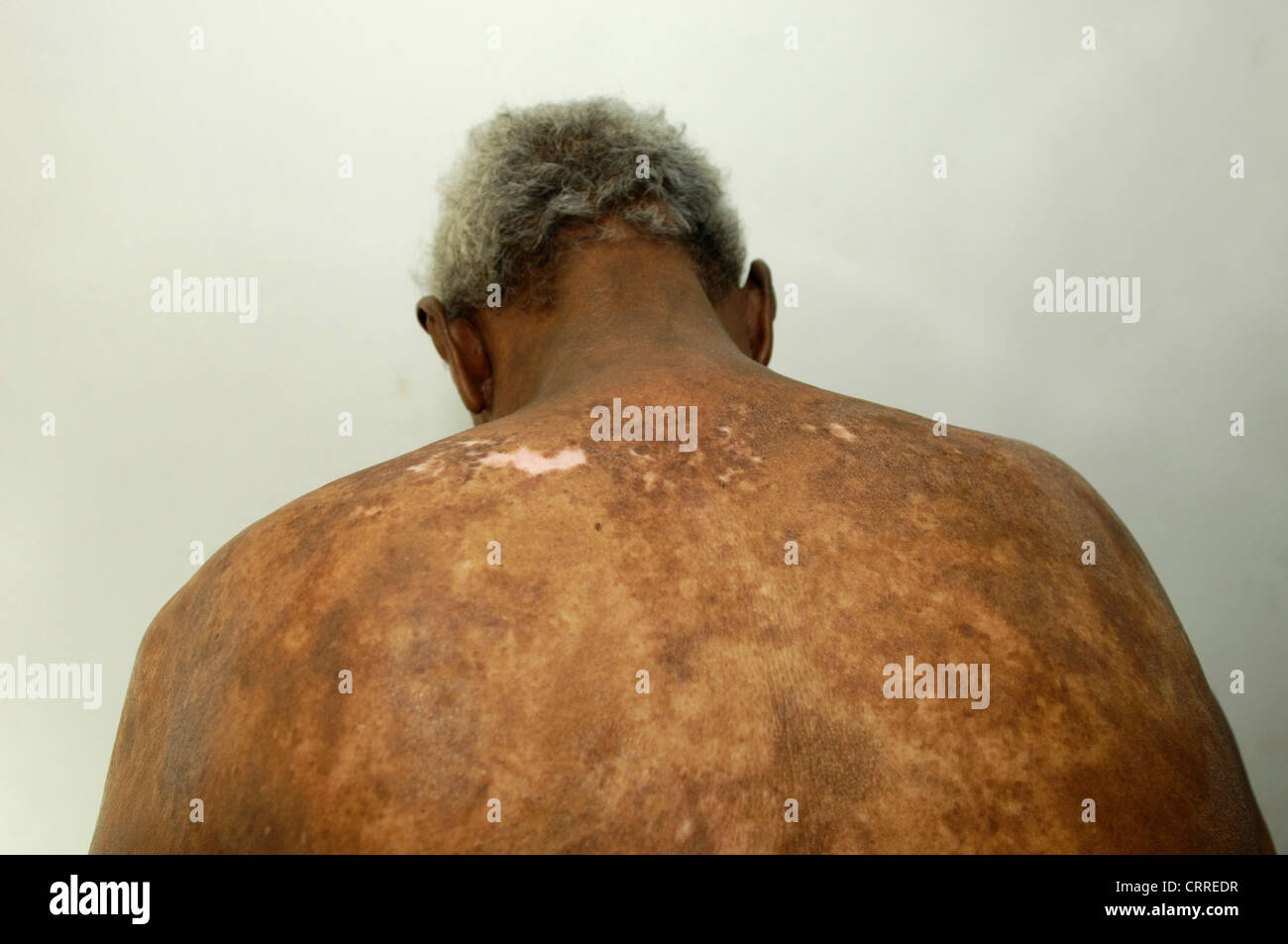 An elderly man with a fungal skin disease. - Stock Image
