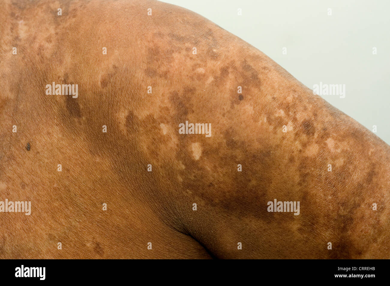 A patient with a fungal infection of the skin. - Stock Image