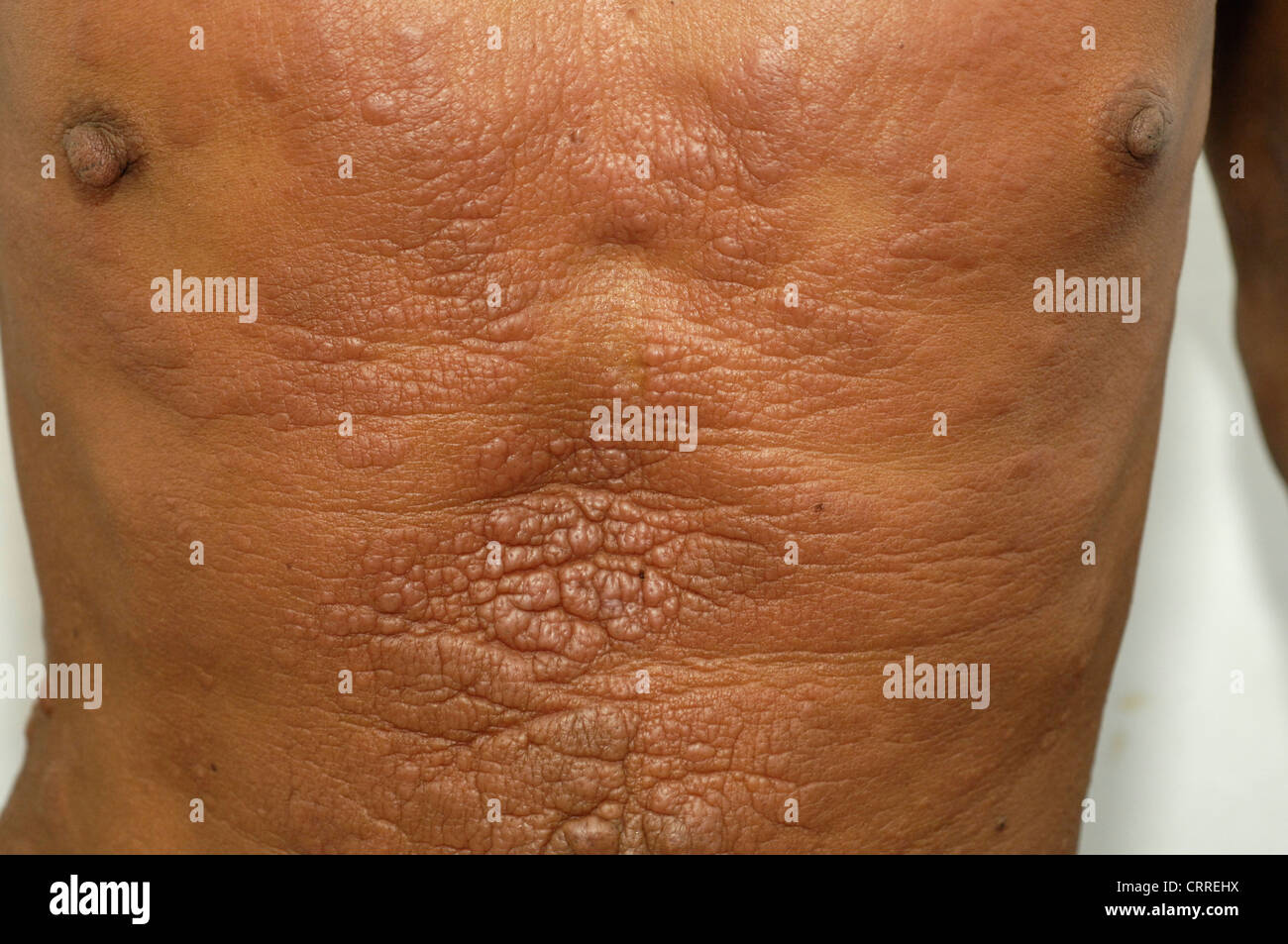 Chickenpox Dermatology Diseases Disease Dorsal Root - Stock Image