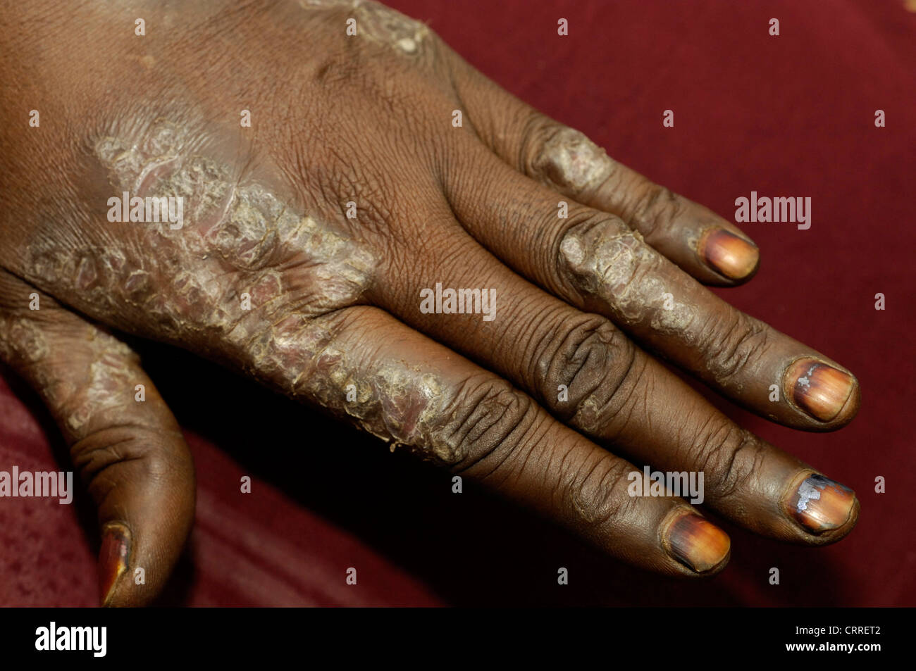 A woman develops scaly plaques on her hands. The etiology is unknown. - Stock Image