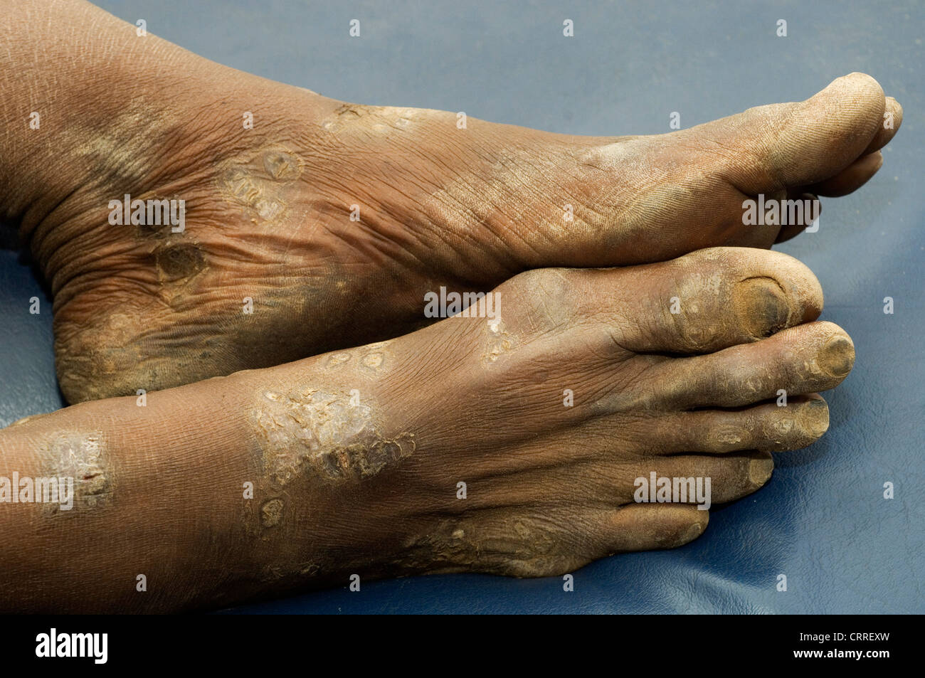 A woman develops scaly plaques on her feet. The etiology is unknown. - Stock Image