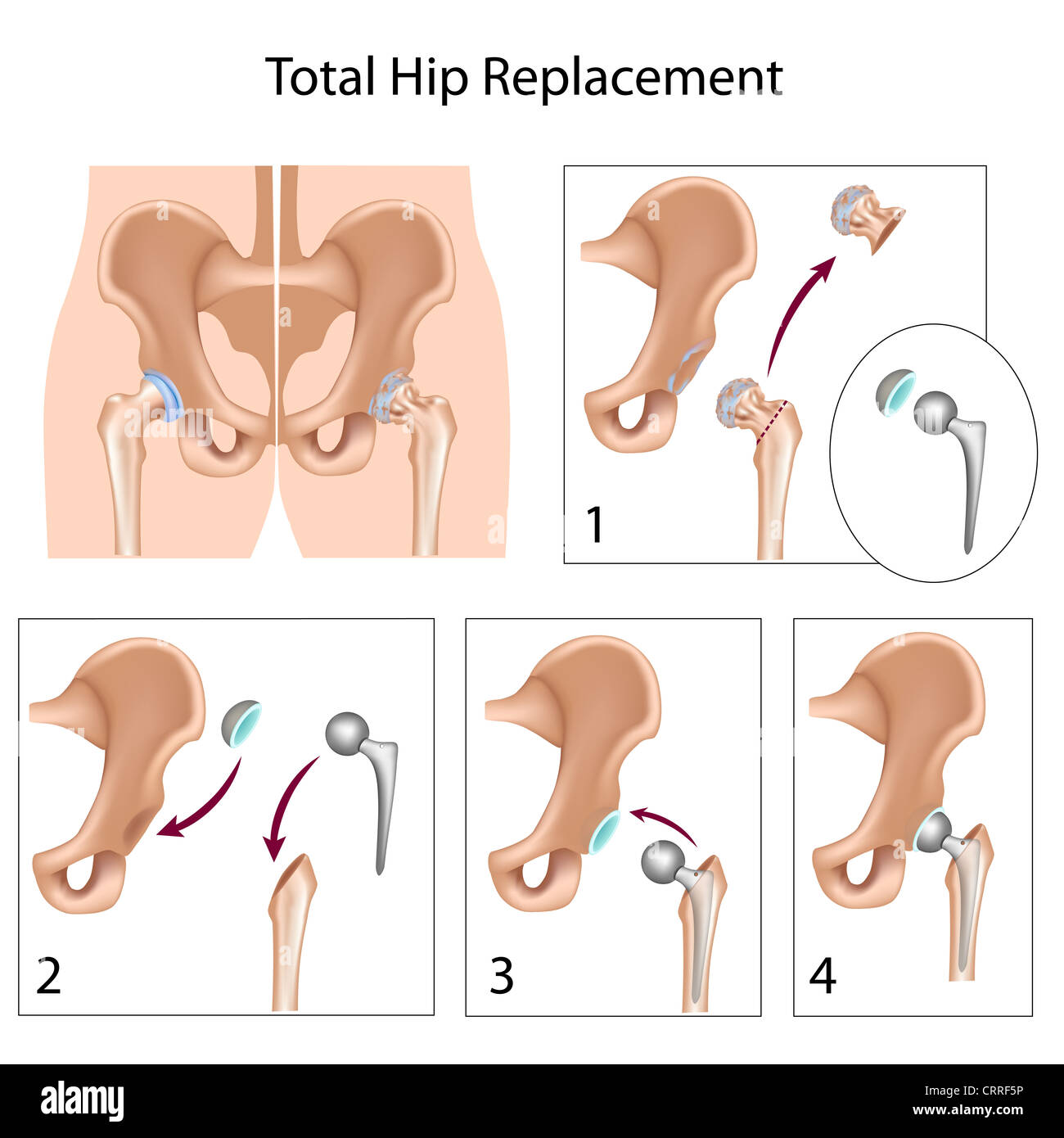 Total hip replacement surgery - Stock Image