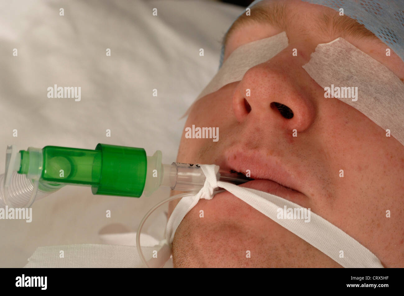 Close up of an anesthetized patient. - Stock Image