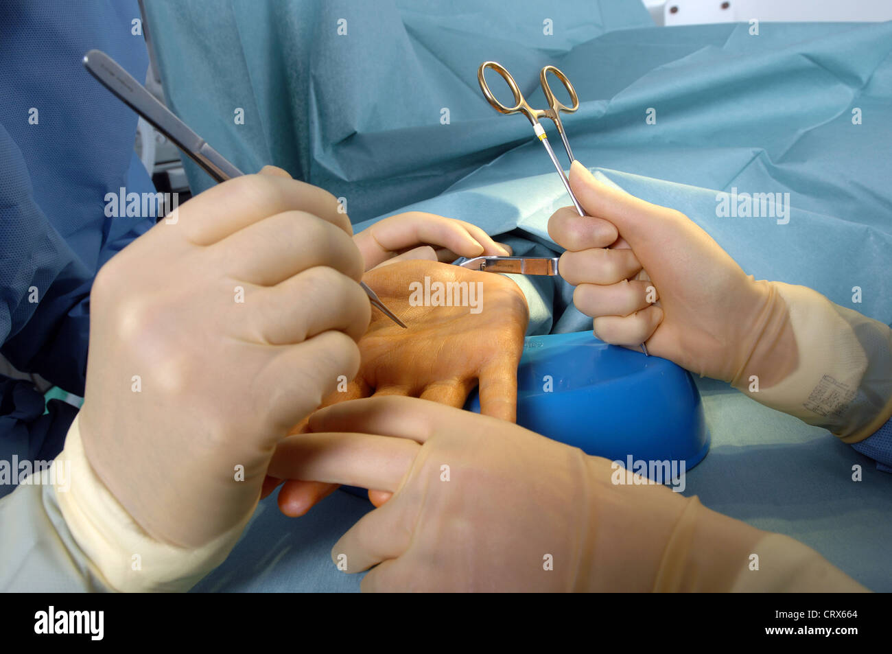 A surgeon preparing to operate on a patient's hand. - Stock Image