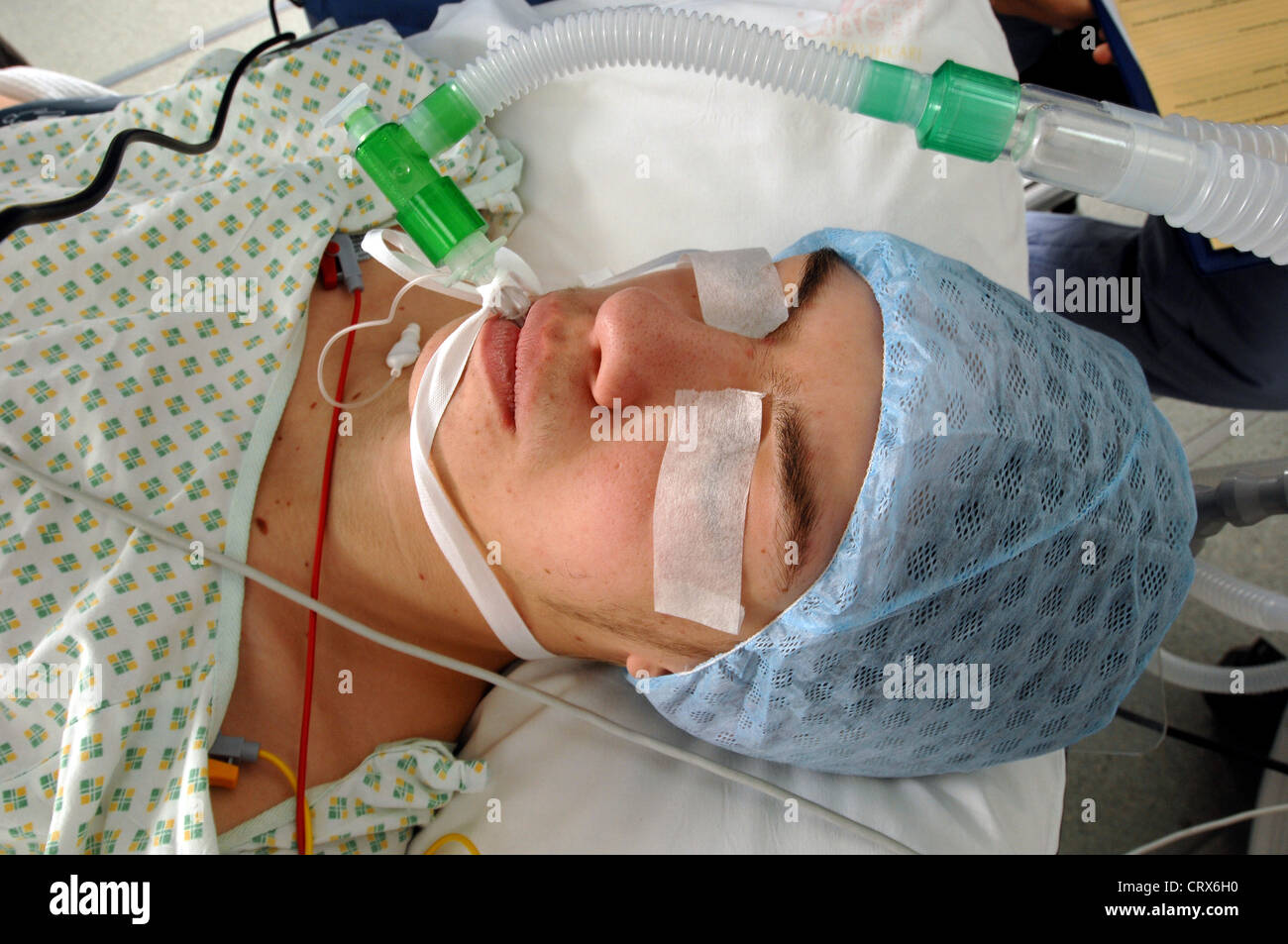Close up of an anaesthetised male patient with tubes in the mouth linked to electronic monitoring equipment. - Stock Image