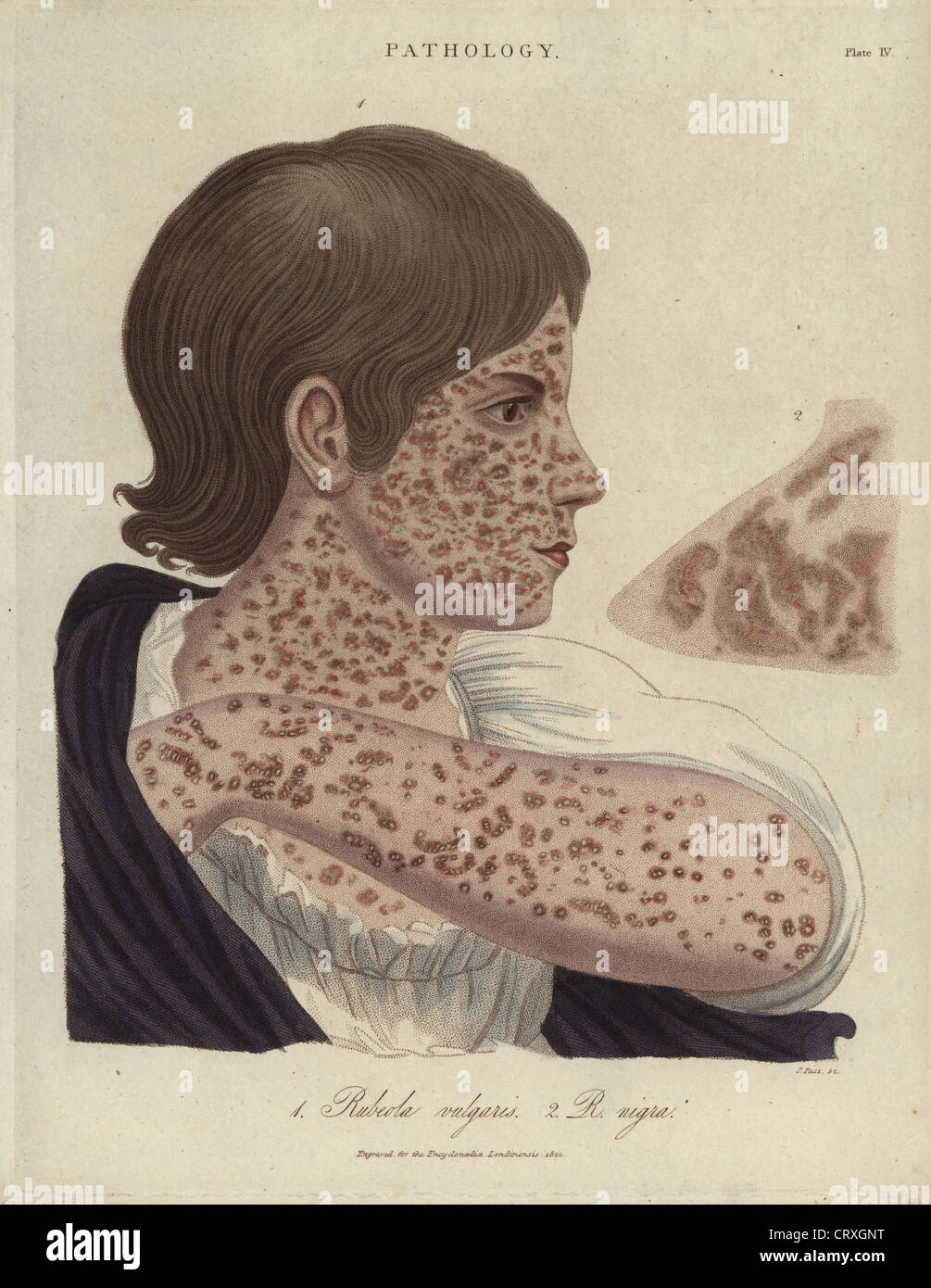 Measles, Rubeola vulgaris and R. nigra, from 'Encyclopedia Londinensis,' 1822. - Stock Image