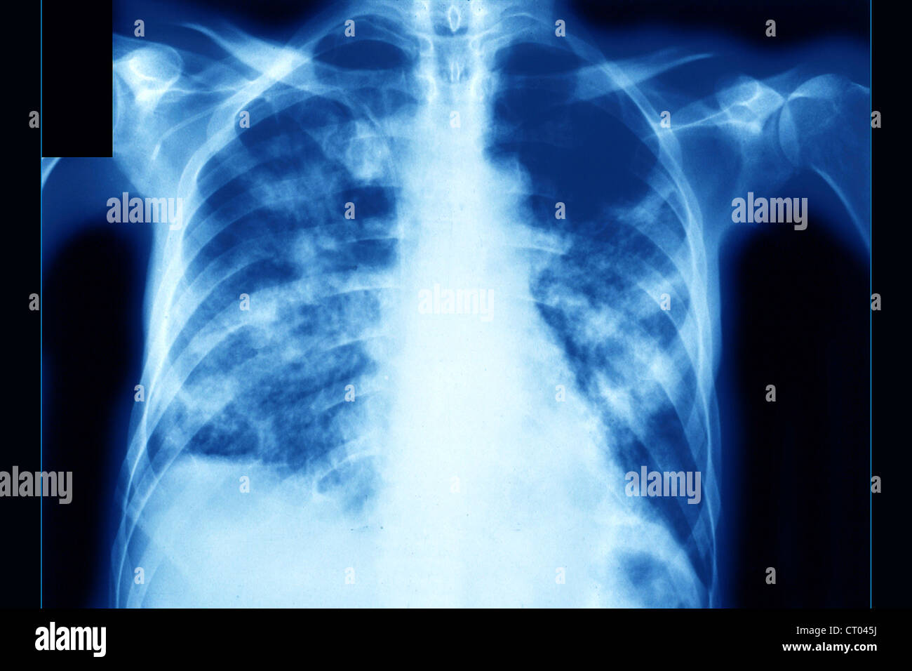 PNEUMONIA, PNEUMOCYSTIS CARINII Stock Photo: 49175774 - Alamy