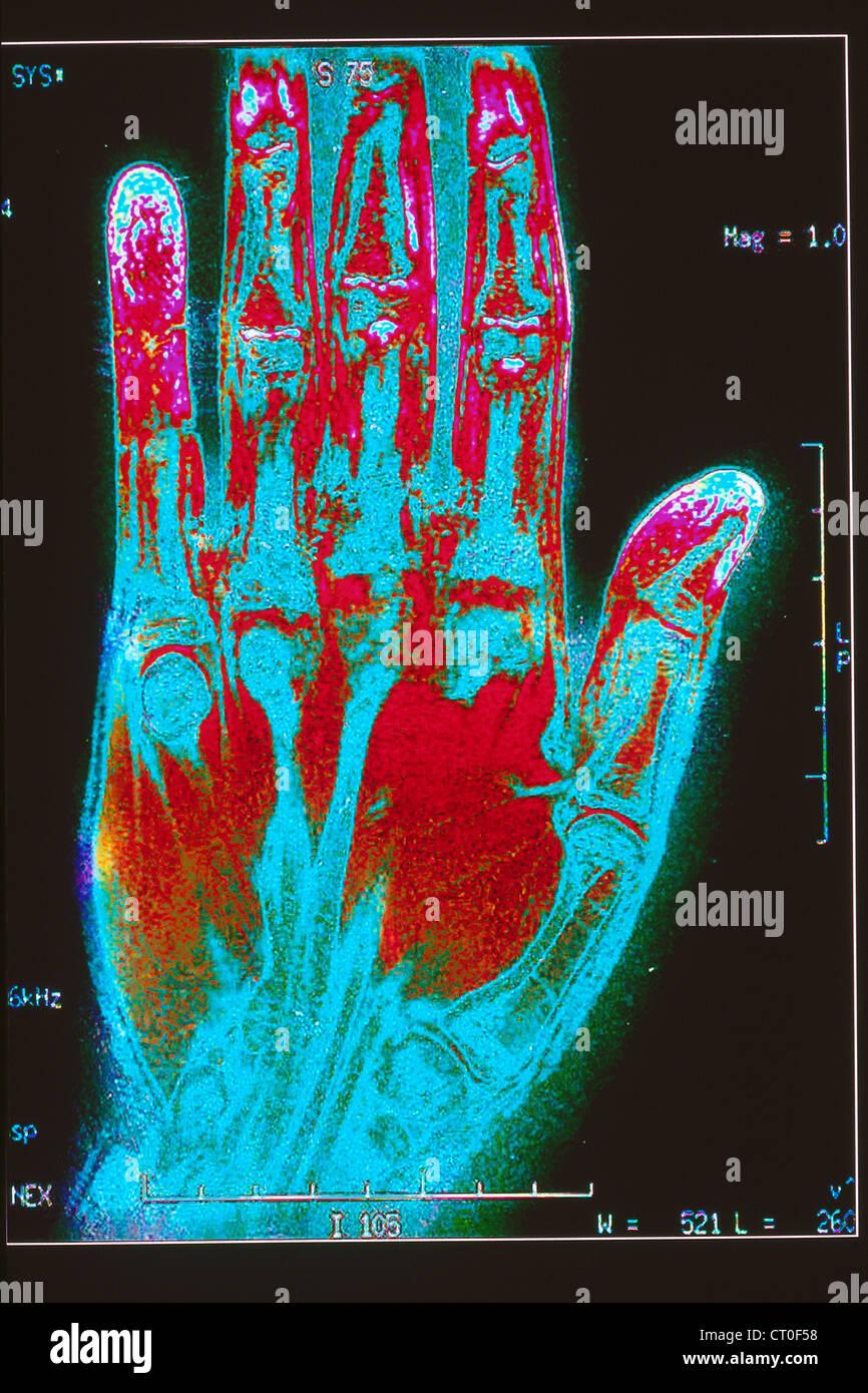 Hand Mri Stock Photo 49184388 Alamy