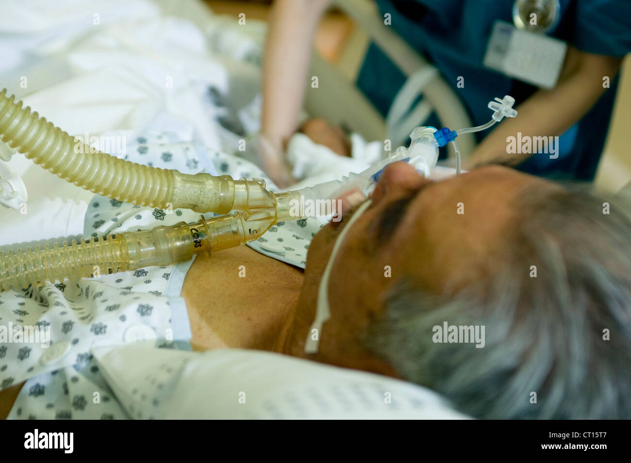 A close up of a patient having general anaesthetic gas administered, on the intensive care unit, Samsung Medical - Stock Image