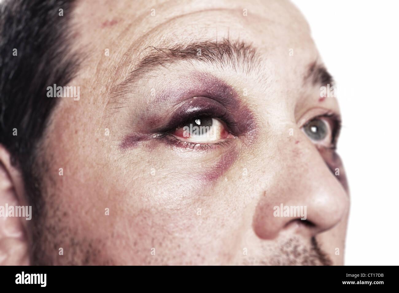 The Black Eye: Head or Face Contusion | Rothman ...