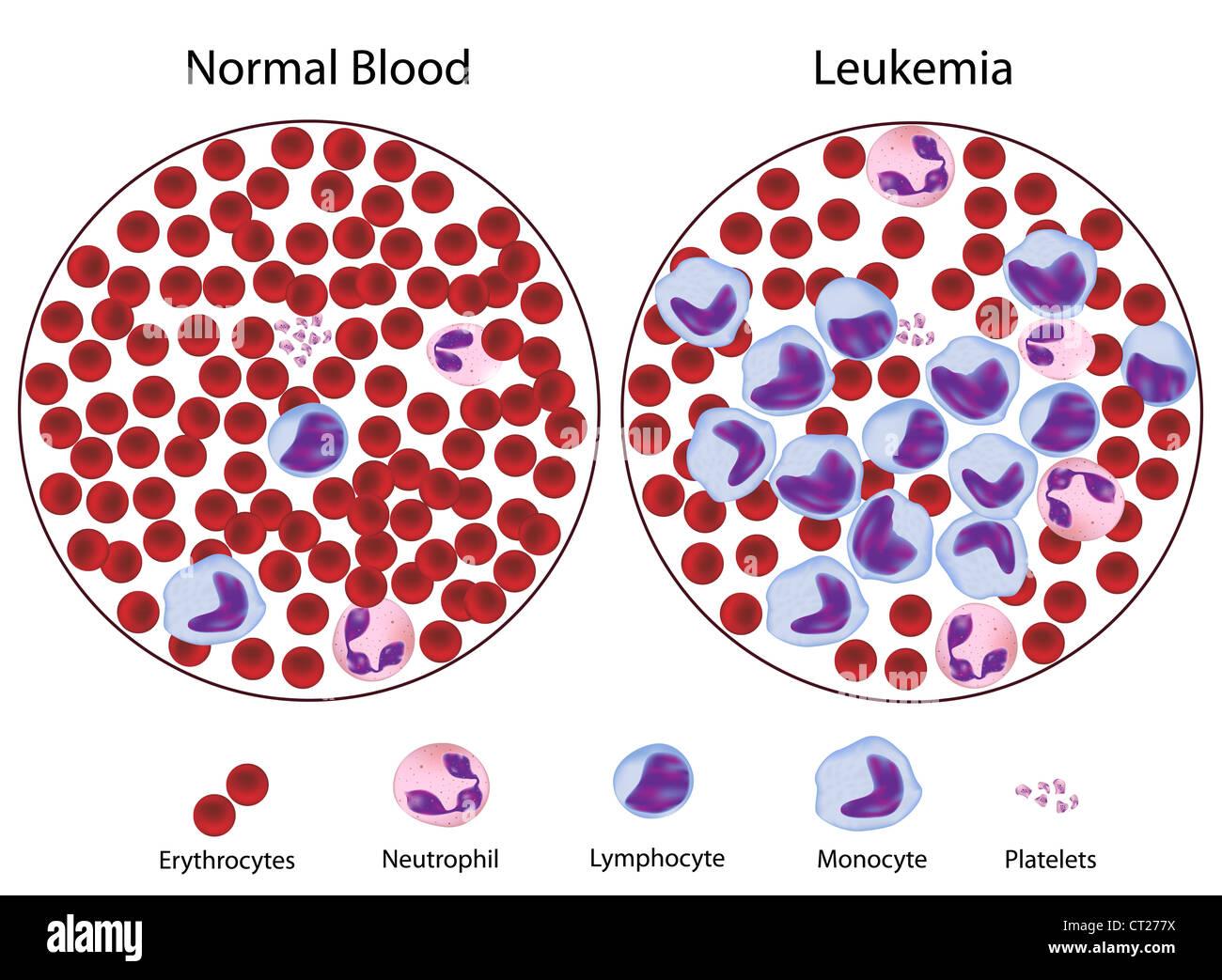 Leukemia versus normal blood - Stock Image