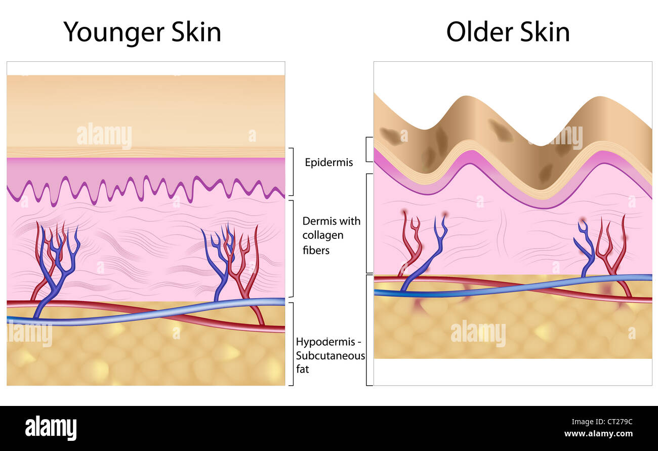 Wrinkled skin versus smooth skin anatomy Stock Photo: 49222136 - Alamy